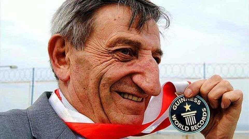 Мехмет Озюрек- человек с самым длинным носом попал в Книгу рекордов Гиннесса